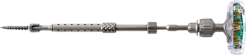 DSG-Screw-Smart